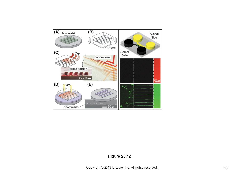 13 Copyright © 2013 Elsevier Inc. All rights reserved. Figure 28.12