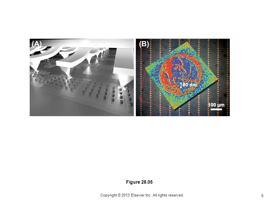 6 Copyright © 2013 Elsevier Inc. All rights reserved. Figure 28.05