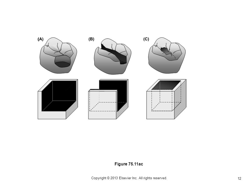 12 Copyright © 2013 Elsevier Inc. All rights reserved. Figure 75.11ac