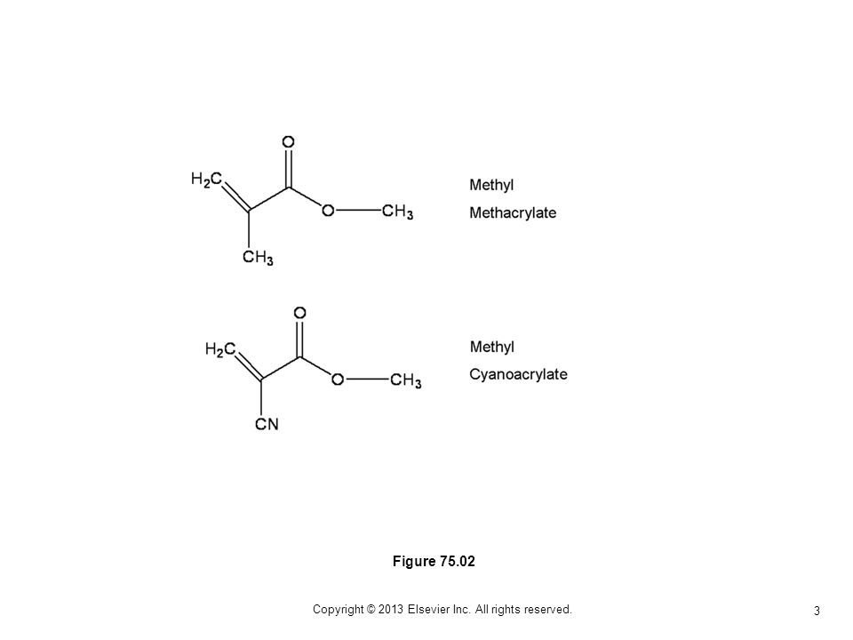 3 Copyright © 2013 Elsevier Inc. All rights reserved. Figure 75.02