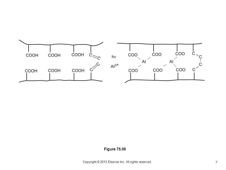 8 Copyright © 2013 Elsevier Inc. All rights reserved. Figure 75.07