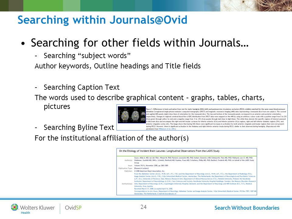 24 Searching within Journals@Ovid Searching for other fields within Journals… –Searching subject words Author keywords, Outline headings and Title fields –Searching Caption Text The words used to describe graphical content – graphs, tables, charts, pictures –Searching Byline Text For the institutional affiliation of the author(s)