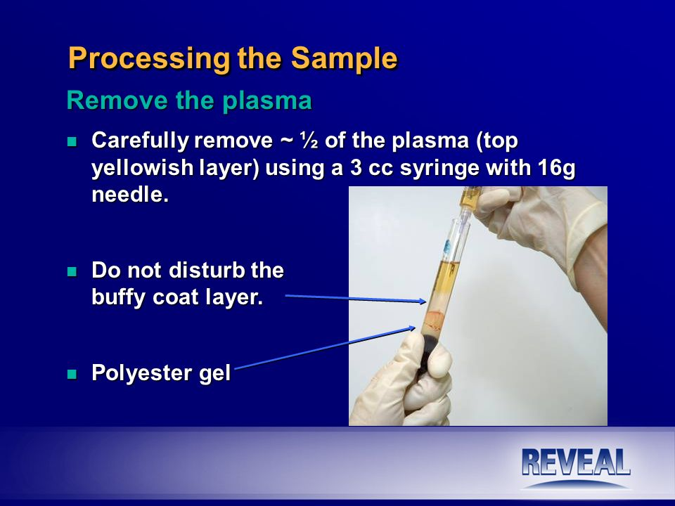 ~ ¼ inch Processing the Sample Remove the plasma n Carefully remove ~ ½ of the plasma (top yellowish layer) using a 3 cc syringe with 16g needle. n Do