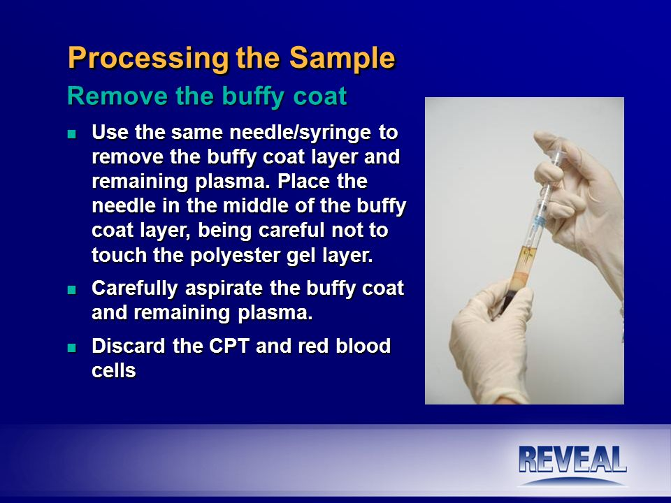 Processing the Sample Remove the buffy coat n Use the same needle/syringe to remove the buffy coat layer and remaining plasma. Place the needle in the