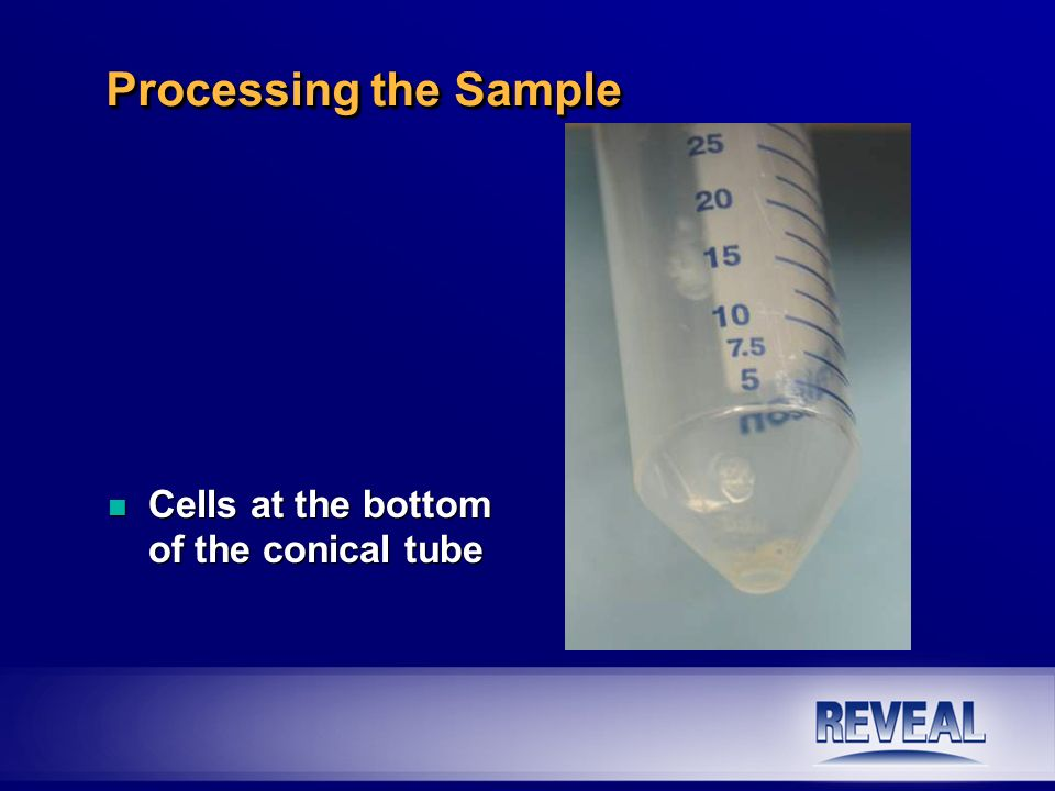 n Cells at the bottom of the conical tube Processing the Sample