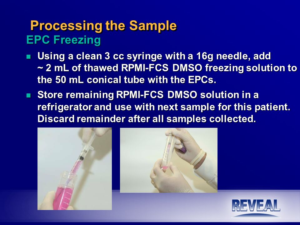 EPC Freezing n Using a clean 3 cc syringe with a 16g needle, add ~ 2 mL of thawed RPMI-FCS DMSO freezing solution to the 50 mL conical tube with the E