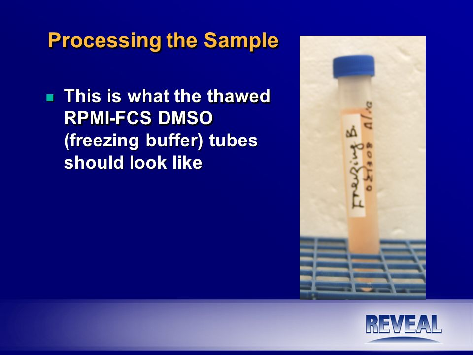 thawed RPMI-FCS DMSO n This is what the thawed RPMI-FCS DMSO (freezing buffer) tubes should look like Processing the Sample