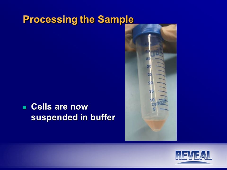 n Cells are now suspended in buffer Processing the Sample