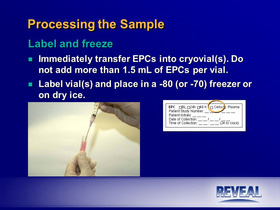 Label and freeze n Immediately transfer EPCs into cryovial(s). Do not add more than 1.5 mL of EPCs per vial. n Label vial(s) and place in a -80 (or -7
