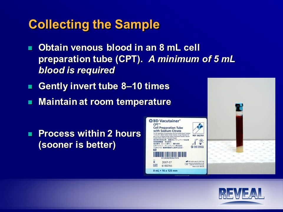 n Obtain venous blood in an 8 mL cell preparation tube (CPT). A minimum of 5 mL blood is required n Gently invert tube 8–10 times n Maintain at room t