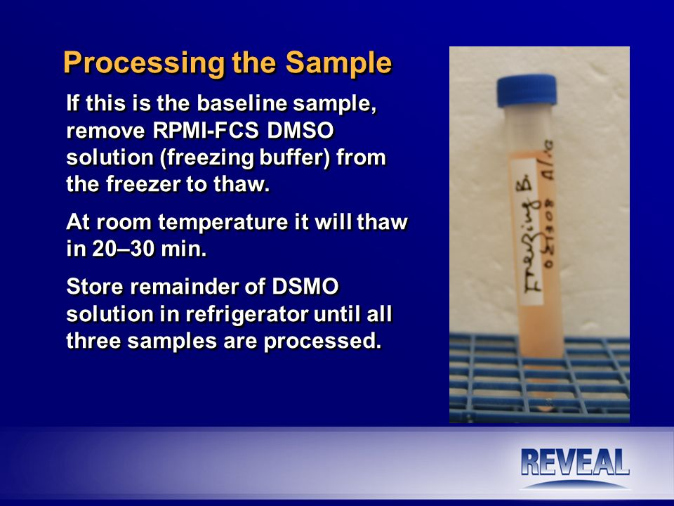 If this is the baseline sample, remove RPMI-FCS DMSO solution (freezing buffer) from the freezer to thaw. At room temperature it will thaw in 20–30 mi