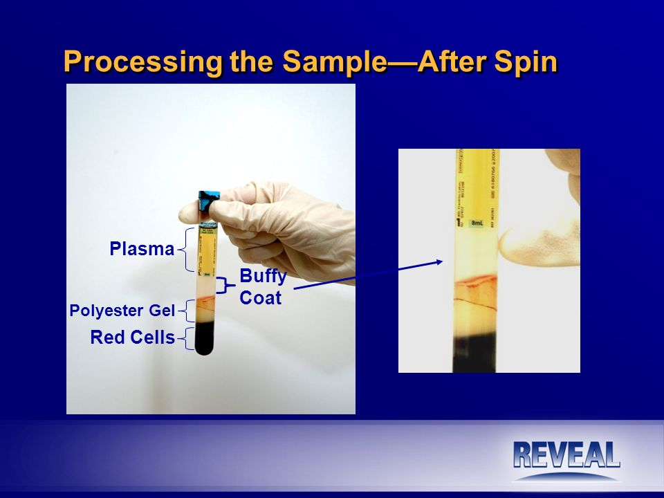 EPC Freezing n Aspirate the solution into the syringe.