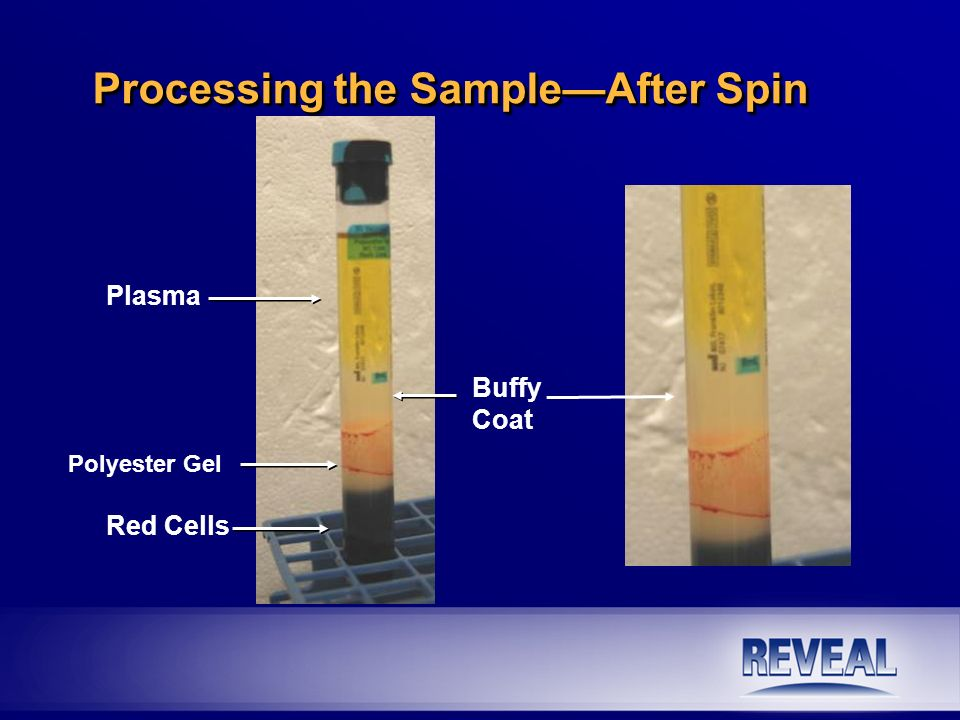 Label and freeze n Immediately transfer EPCs into cryovial(s).