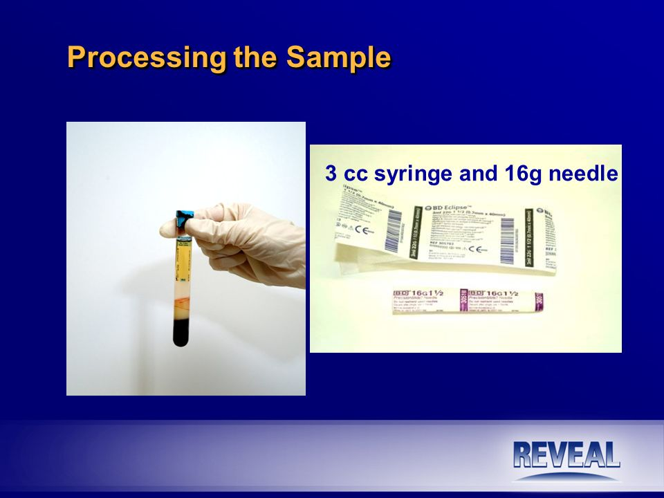 3 cc syringe and 16g needle Processing the Sample