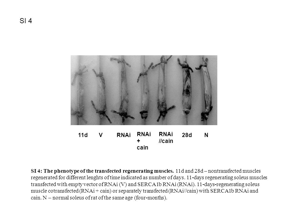 SI 3. 11d V RNAi RNAi + cain RNAi //cain 28dN SI 4 SI 4: The phenotype of the transfected regenerating muscles. 11d and 28d – nontransfected muscles r