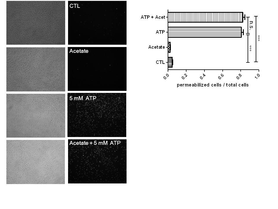 CTL Acetate + 5 mM ATP Acetate 5 mM ATP