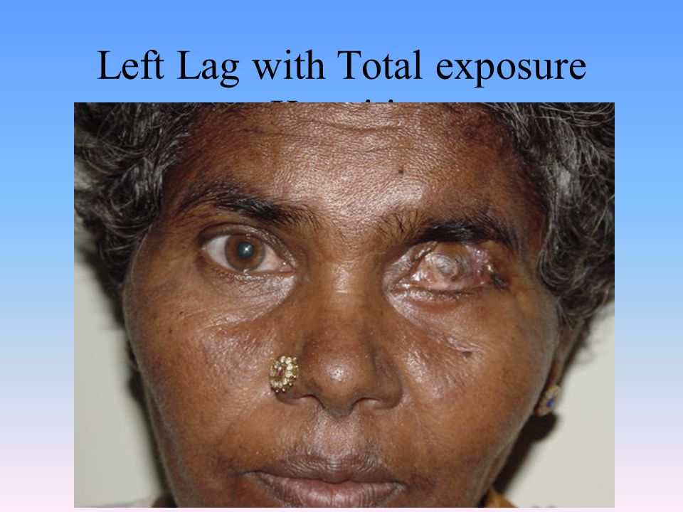 Left Lag with Total exposure Keratitis