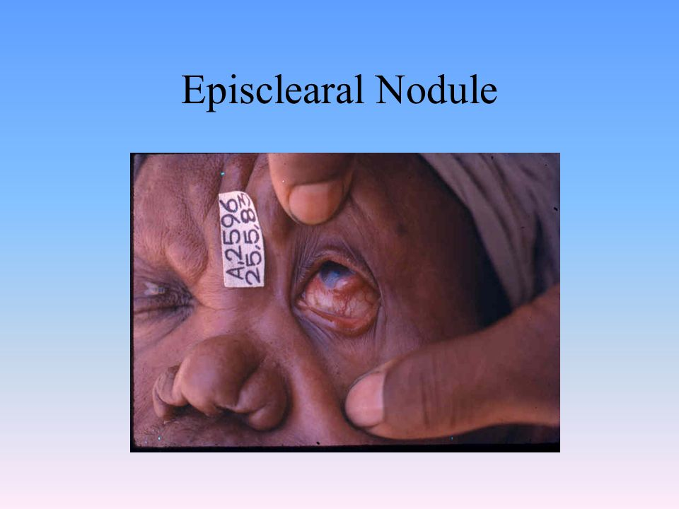 Episclearal Nodule