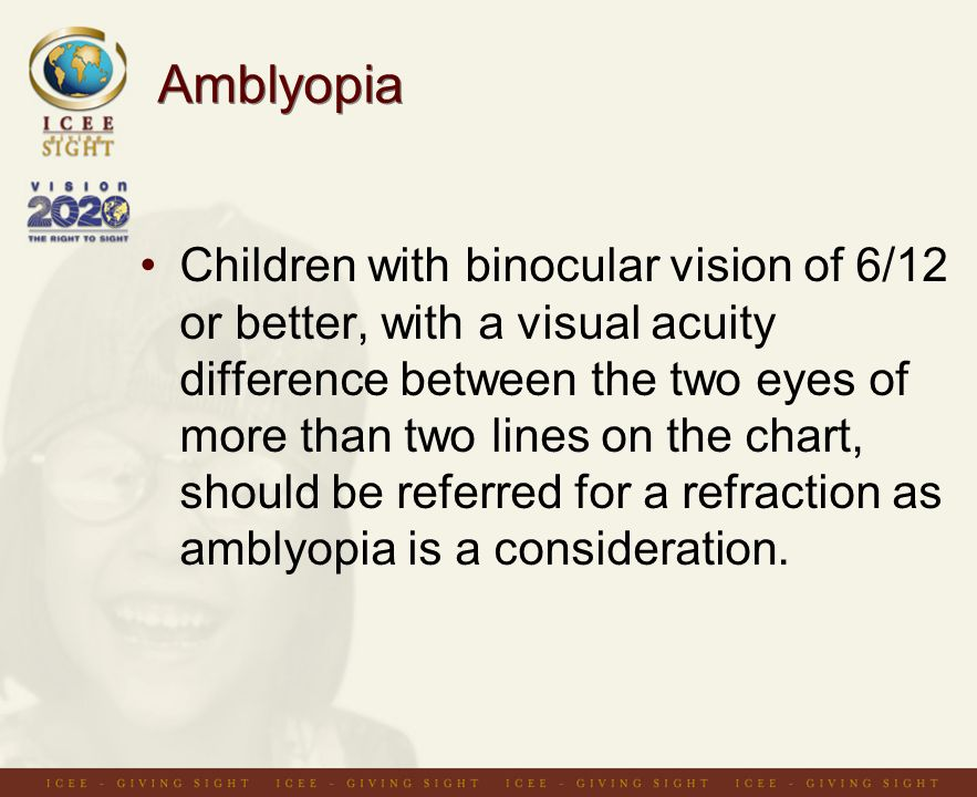 Amblyopia Children with binocular vision of 6/12 or better, with a visual acuity difference between the two eyes of more than two lines on the chart, should be referred for a refraction as amblyopia is a consideration.