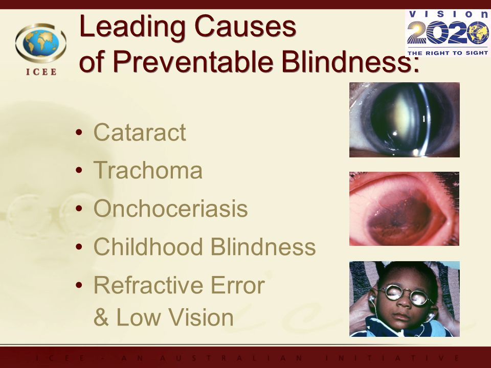 Leading Causes of Preventable Blindness: Cataract Trachoma Onchoceriasis Childhood Blindness Refractive Error & Low Vision Cataract Trachoma Onchoceriasis Childhood Blindness Refractive Error & Low Vision