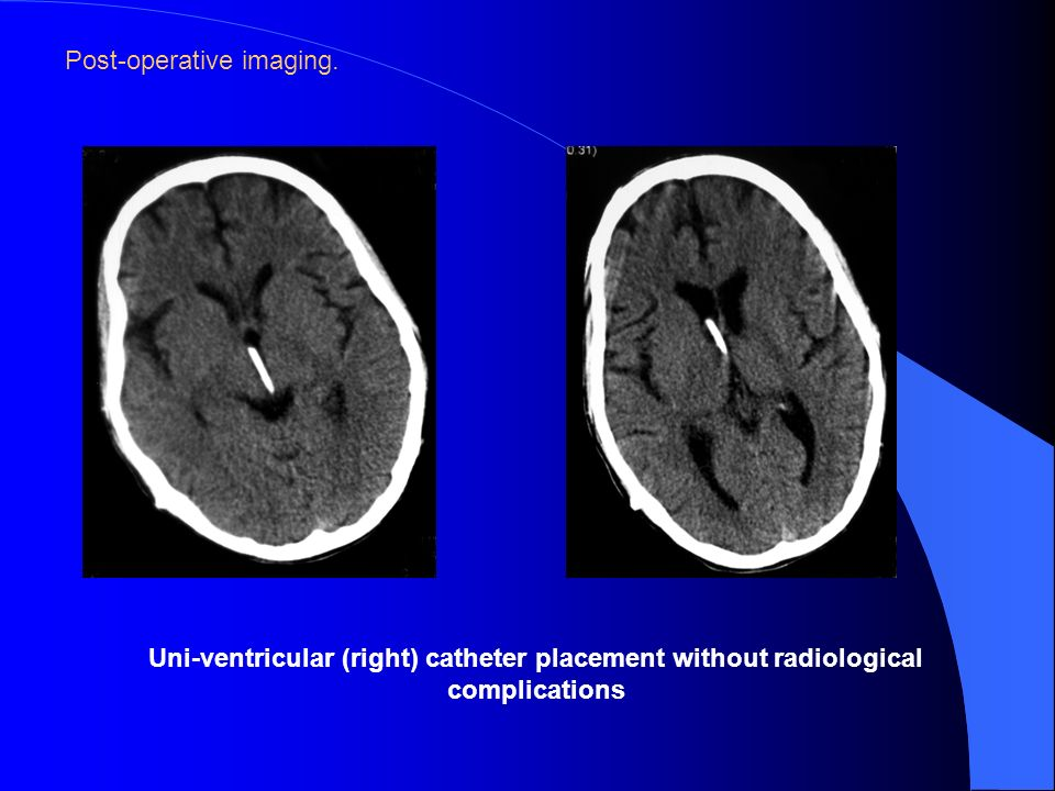 Post-operative imaging. Uni-ventricular (right) catheter placement without radiological complications