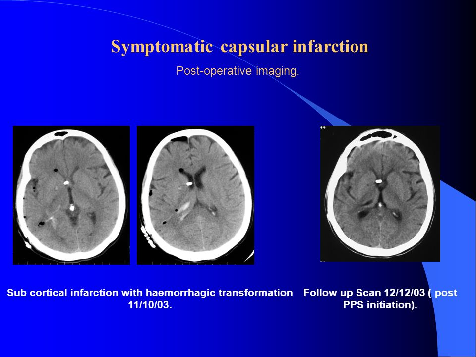 Symptomatic capsular infarction Post-operative imaging. Sub cortical infarction with haemorrhagic transformation 11/10/03. Follow up Scan 12/12/03 ( p