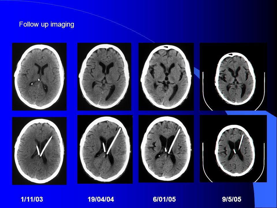 Follow up imaging 1/11/03 19/04/04 6/01/05 9/5/05