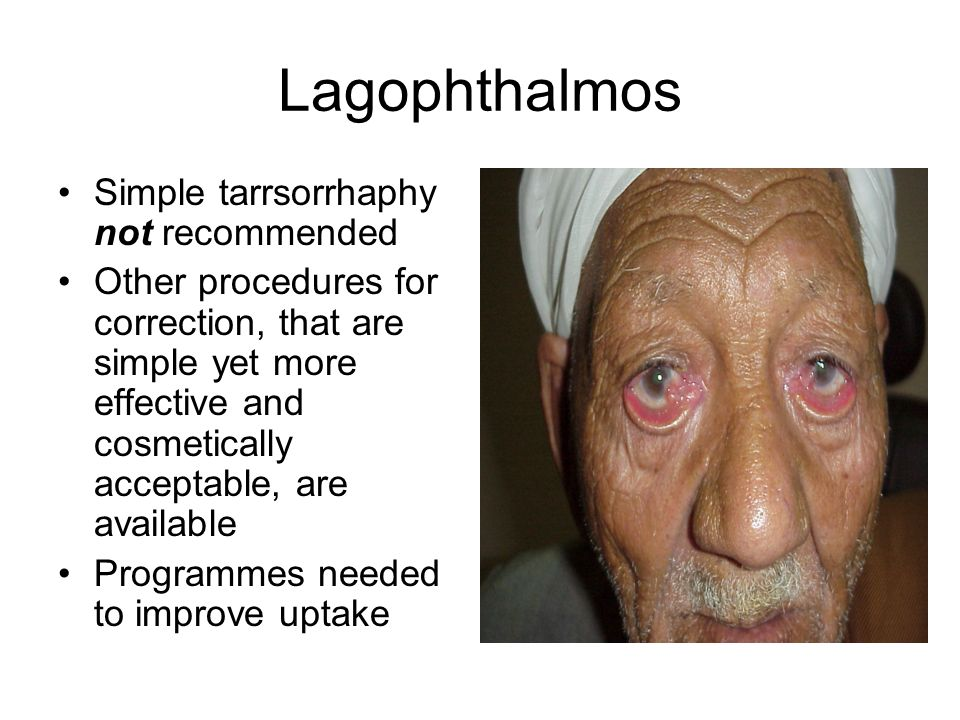 Lagophthalmos Simple tarrsorrhaphy not recommended Other procedures for correction, that are simple yet more effective and cosmetically acceptable, are available Programmes needed to improve uptake