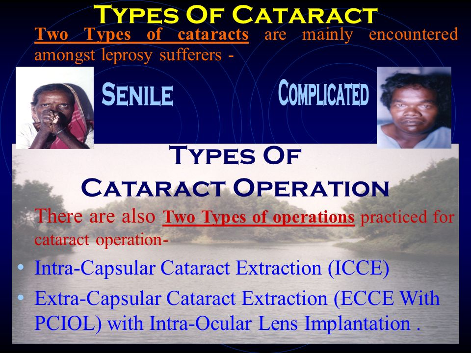 Operation of choice : ECCE with PCIOL It does not require extra-spectacles.