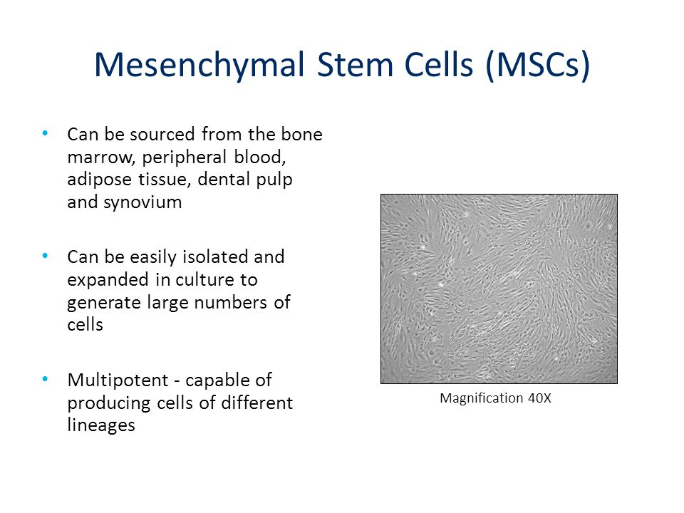 Mesenchymal Stem Cells (MSCs) Can be sourced from the bone marrow, peripheral blood, adipose tissue, dental pulp and synovium Can be easily isolated a