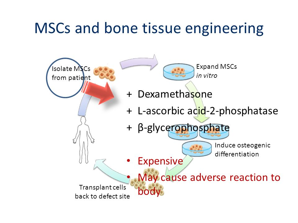 MSCs and bone tissue engineering +Dexamethasone +L-ascorbic acid-2-phosphatase +β-glycerophosphate Expensive May cause adverse reaction to body Expand
