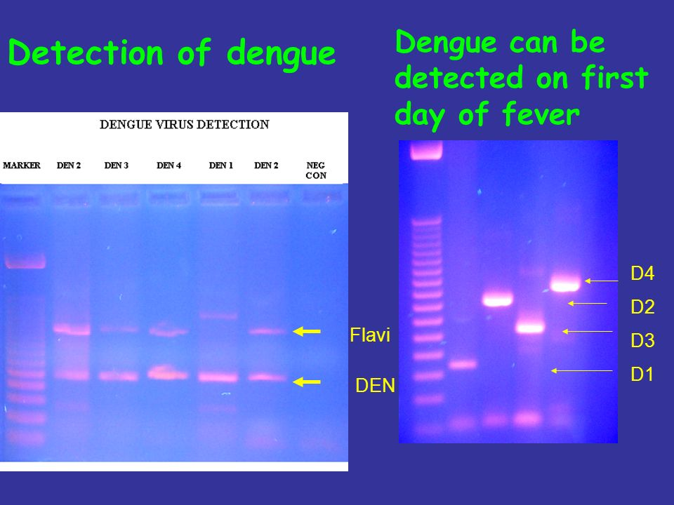 Detection of dengue Dengue can be detected on first day of fever D4 D2 D3 D1 DEN Flavi