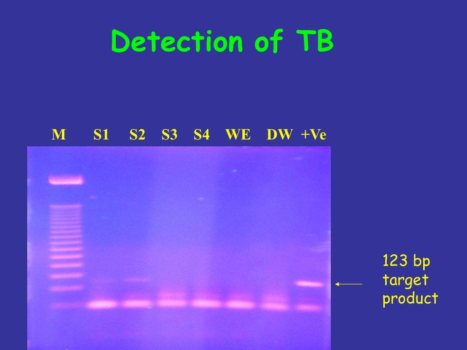Detection of TB M S1 S2 S3 S4 WE DW +Ve 123 bp target product