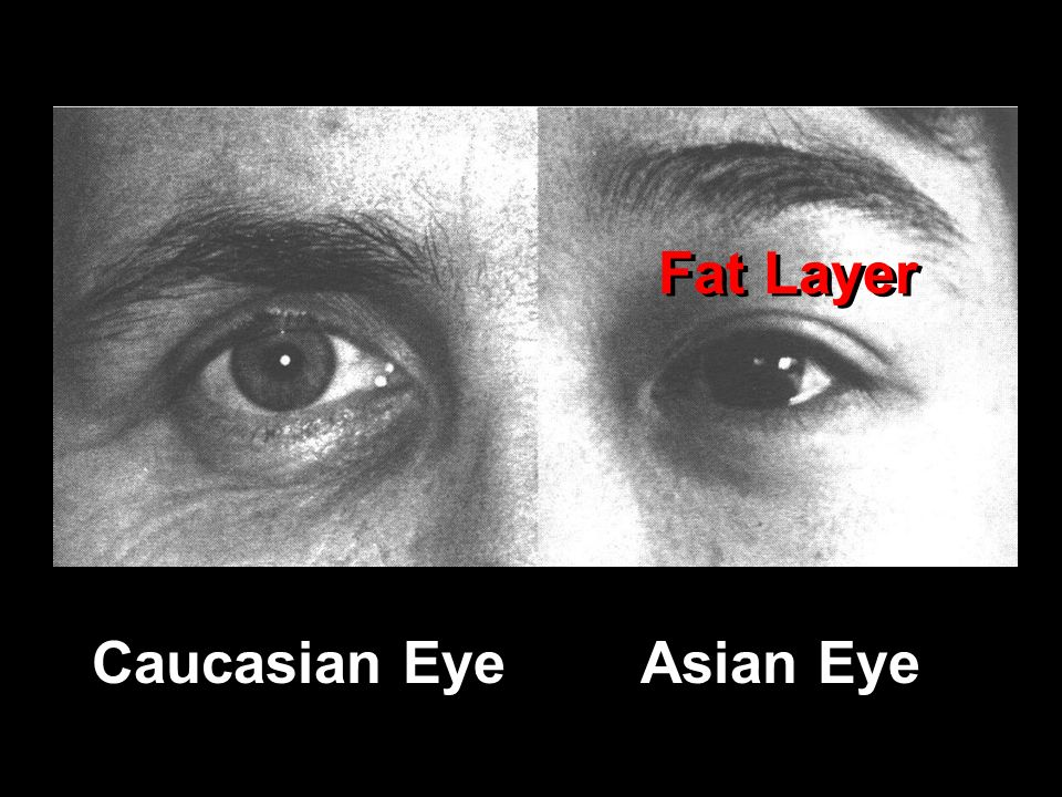 Caucasian EyeAsian Eye Fat Layer