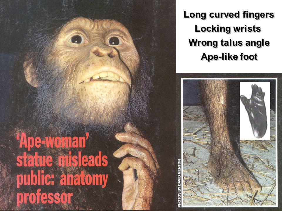 Long curved fingers Locking wrists Wrong talus angle Ape-like foot