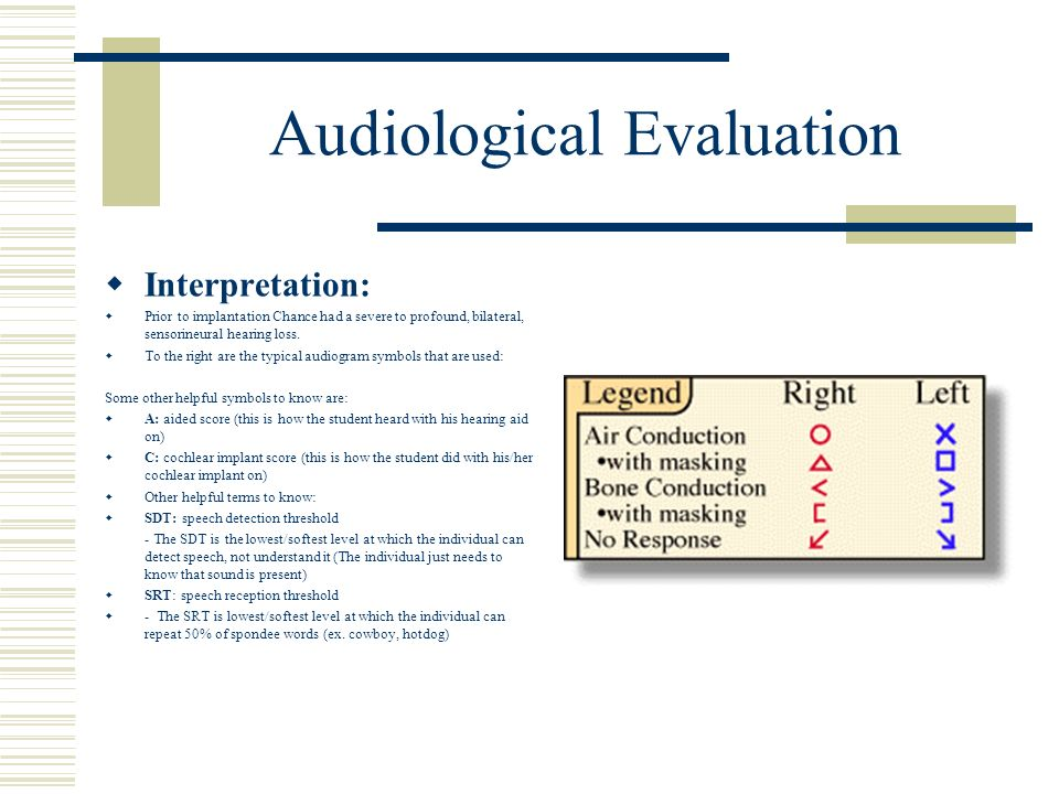 Audiological Evaluation Interpretation: Prior to implantation Chance had a severe to profound, bilateral, sensorineural hearing loss. To the right are
