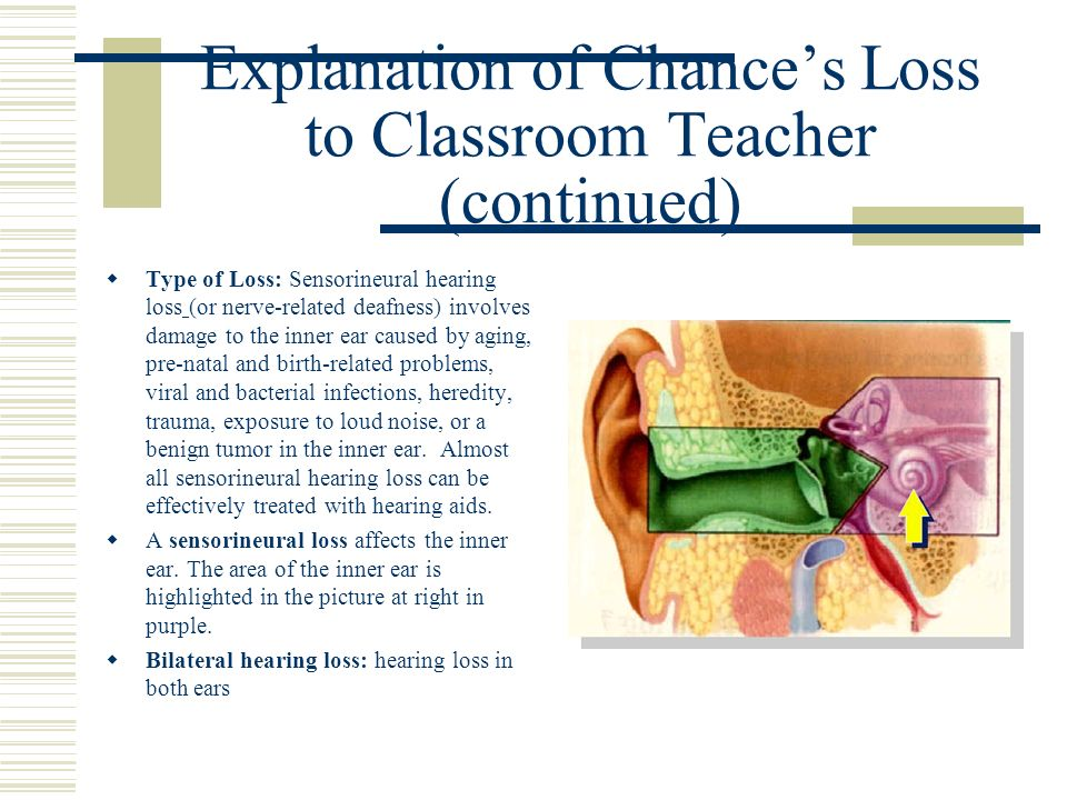 Explanation of Chances Loss to Classroom Teacher (continued) Type of Loss: Sensorineural hearing loss (or nerve-related deafness) involves damage to t