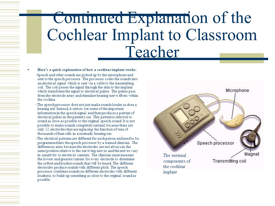 Continued Explanation of the Cochlear Implant to Classroom Teacher Heres a quick explanation of how a cochlear implant works: -Speech and other sounds