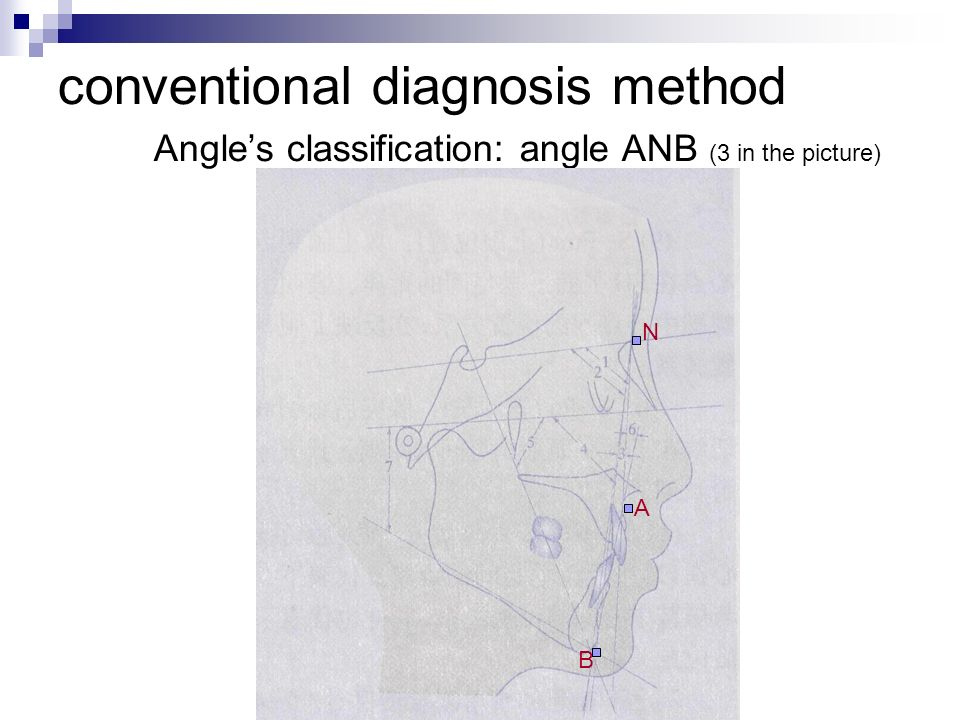 conventional diagnosis method Angles classification: angle ANB (3 in the picture) N A B
