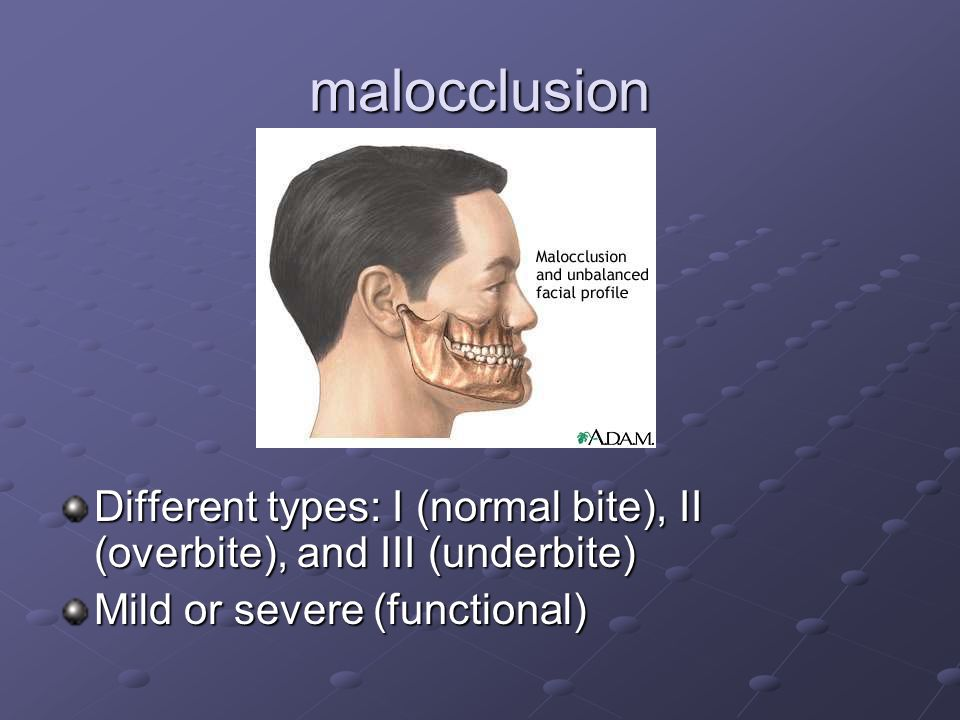 malocclusion Different types: I (normal bite), II (overbite), and III (underbite) Mild or severe (functional)