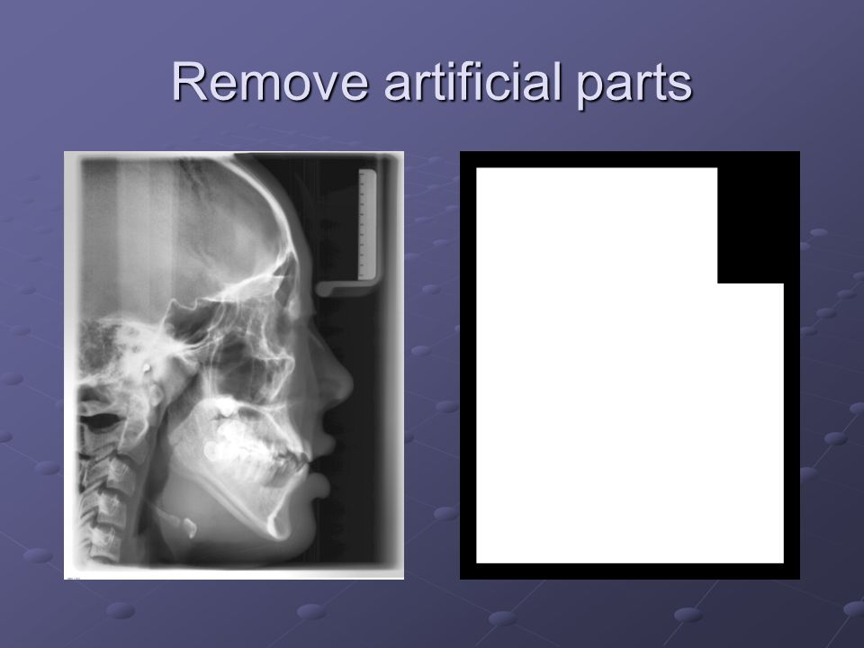 Remove artificial parts