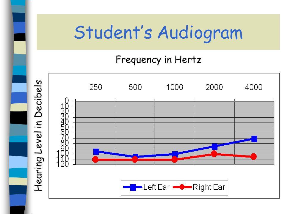 Audiogram of Normal Hearing
