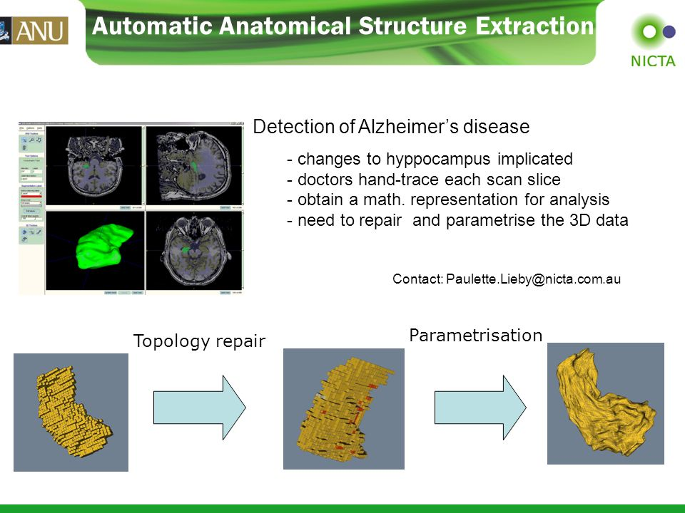 Automatic Anatomical Structure Extraction Topology repair Parametrisation Detection of Alzheimers disease - changes to hyppocampus implicated - doctors hand-trace each scan slice - obtain a math.