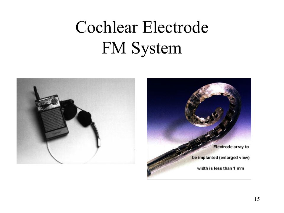 15 Cochlear Electrode FM System