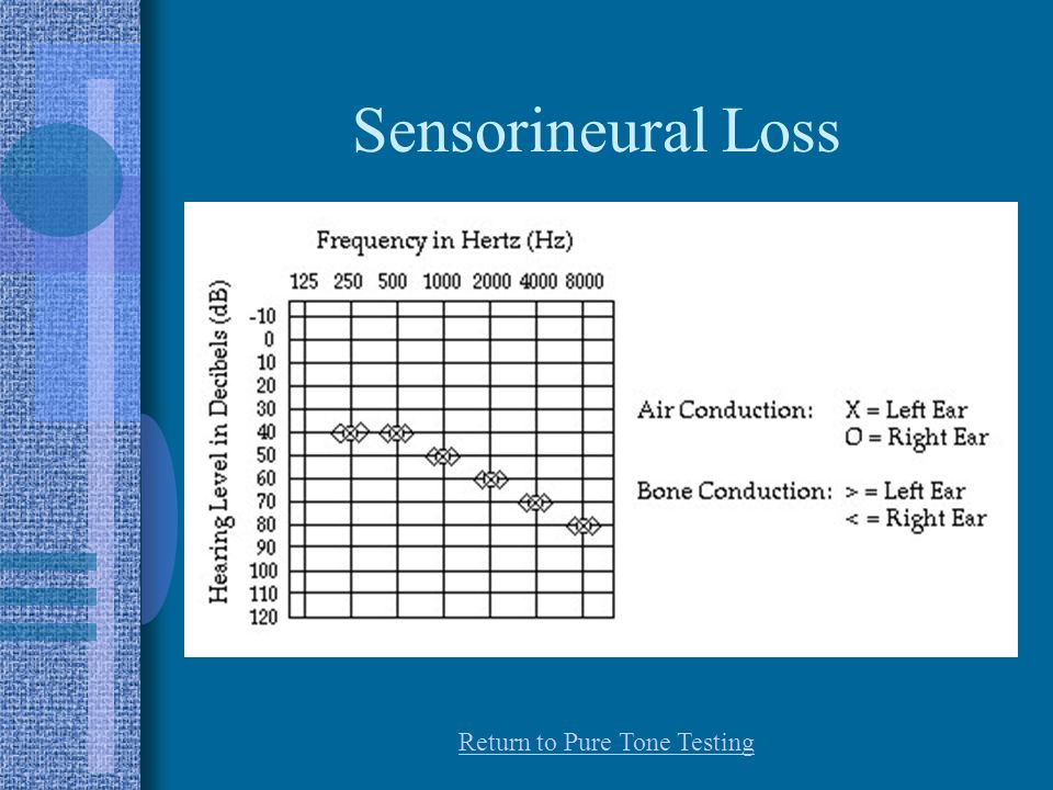 Sensorineural Loss Return to Pure Tone Testing