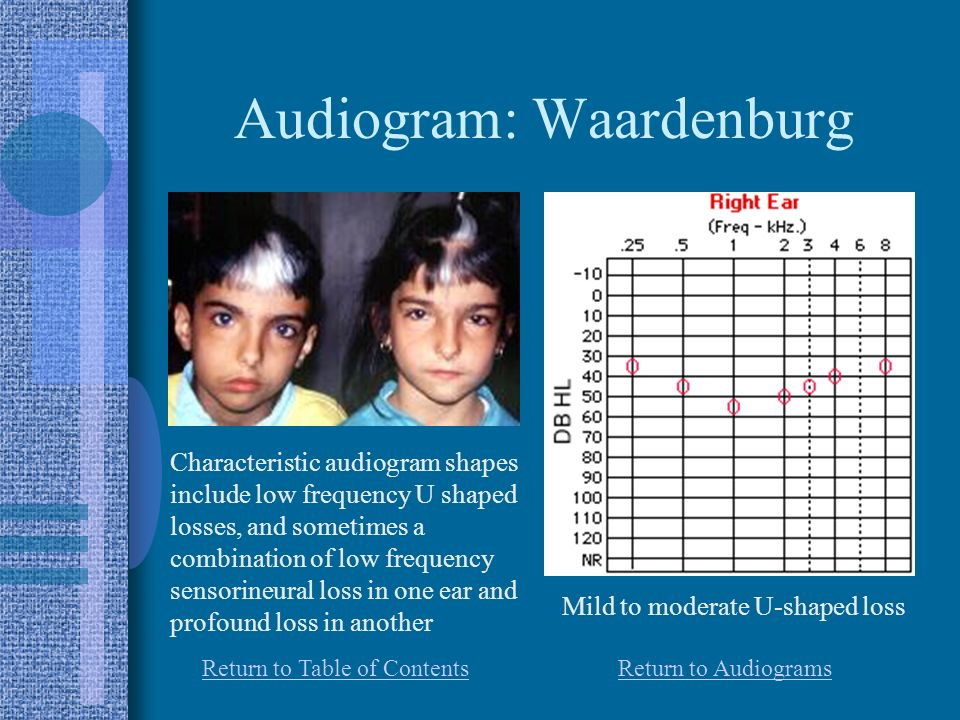 Audiogram: Waardenburg Characteristic audiogram shapes include low frequency U shaped losses, and sometimes a combination of low frequency sensorineural loss in one ear and profound loss in another Mild to moderate U-shaped loss Return to AudiogramsReturn to Table of Contents