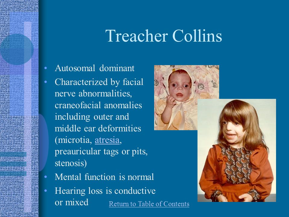 Treacher Collins Autosomal dominant Characterized by facial nerve abnormalities, craneofacial anomalies including outer and middle ear deformities (microtia, atresia, preauricular tags or pits, stenosis)atresia Mental function is normal Hearing loss is conductive or mixed Return to Table of Contents