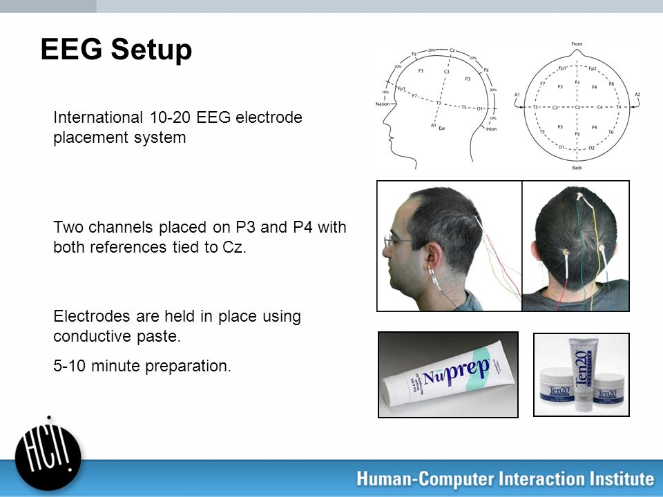 EEG Setup International 10-20 EEG electrode placement system Two channels placed on P3 and P4 with both references tied to Cz. Electrodes are held in