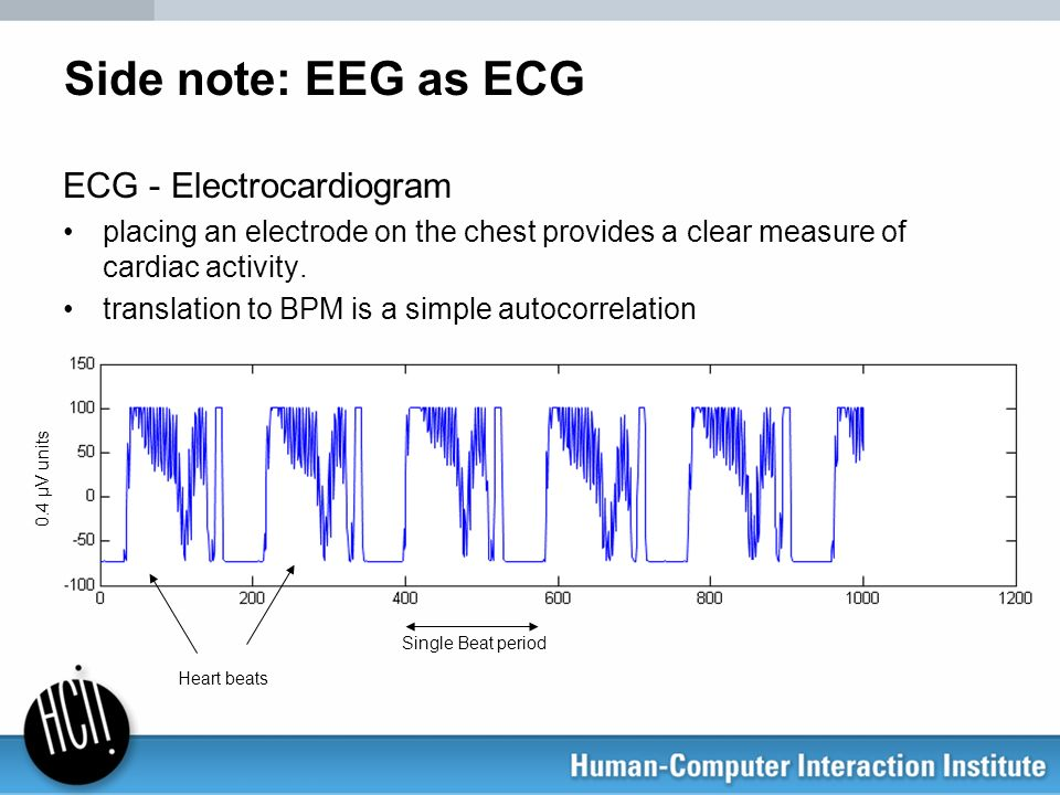 Side note: EEG as ECG ECG - Electrocardiogram placing an electrode on the chest provides a clear measure of cardiac activity. translation to BPM is a