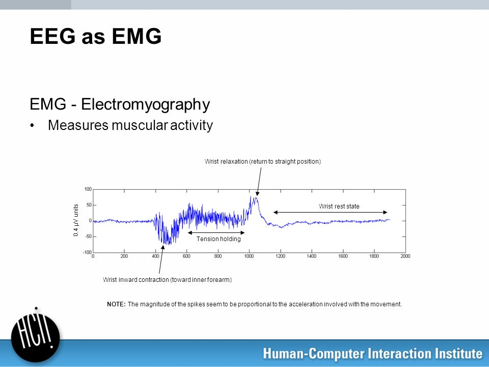 EEG as EMG EMG - Electromyography Measures muscular activity Wrist relaxation (return to straight position) Tension holding Wrist inward contraction (